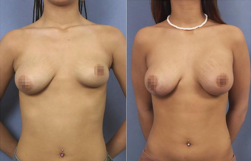 Breast asymetry