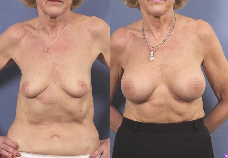 Breast sagging-empty breast- breast implants
