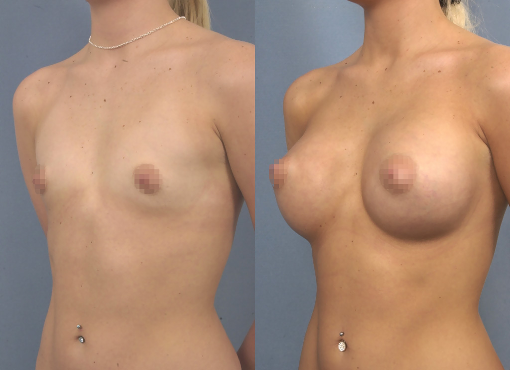 Breast implants 320ml