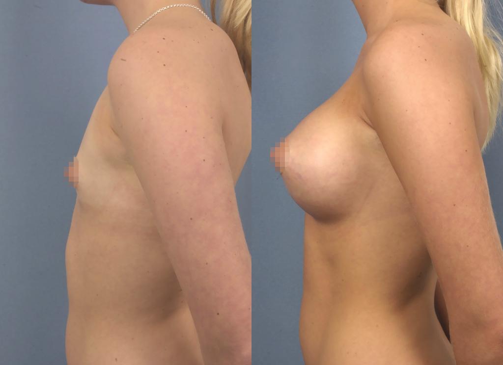 Profil view breast implants 320ml