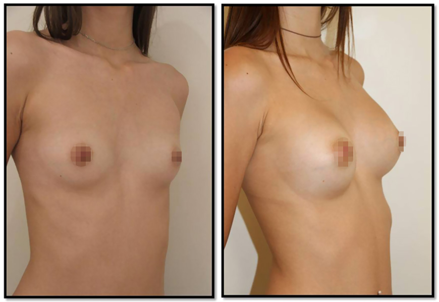 Aesthetic breast augmentation with breast implants