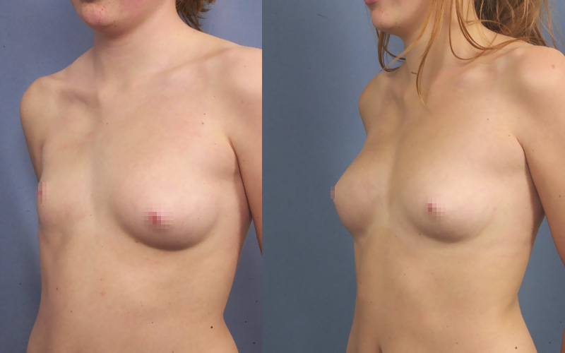 Poland syndrom can be corrected with breast implant alone or breast implants and breast lipofilling
