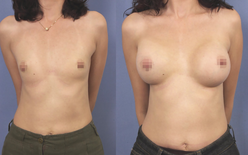 before and after breast augmentation front view on a skinny patient