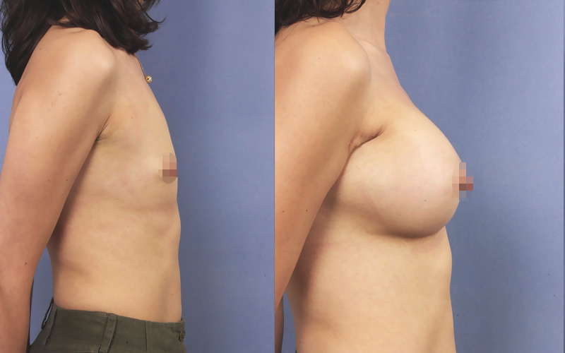 before and after breast augmentation profil view