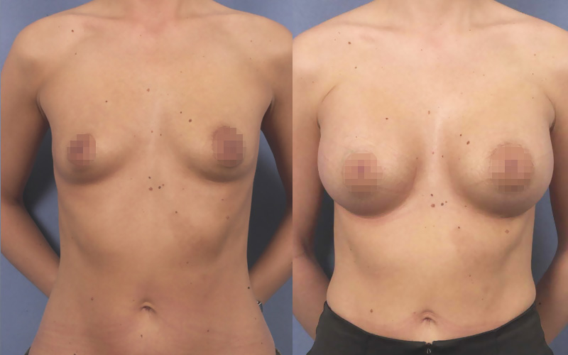 Augmentation with protheses front view 350ml