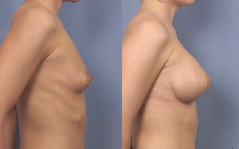 Before and after breast augmentation with implants