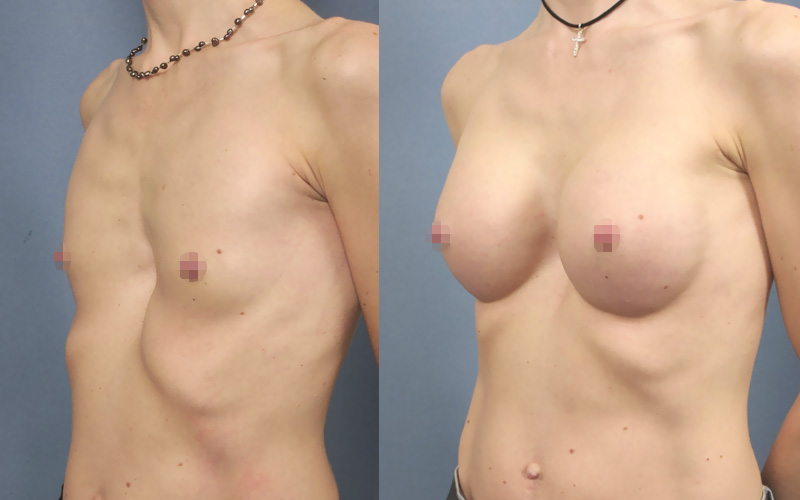 Before and after breast augmentation 3/4 view