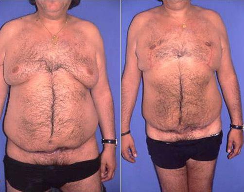 Gynécomastie, chirurgie esthétique mammaire pour homme