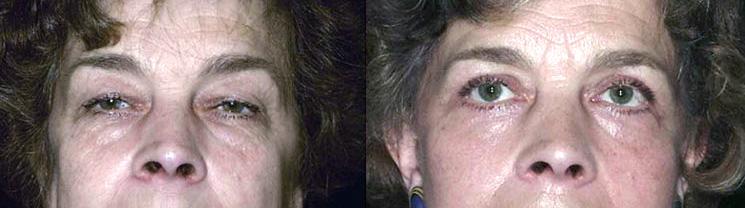 Résultat d'une blépharoplastie pour une femme