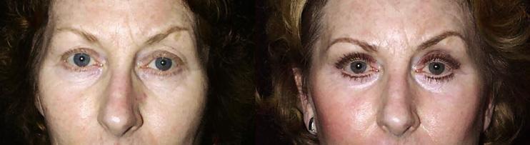 Résultat d'une blépharoplastie chez une femme