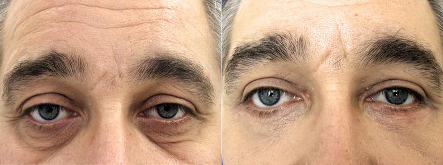 Résultat d'une blépharoplastie chez un homme, zone des yeux
