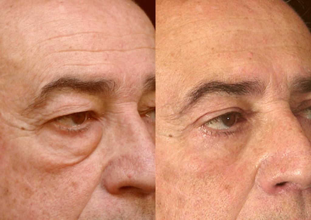 Résultat d'une blépharoplastie pour un homme (2/2 trois quarts)