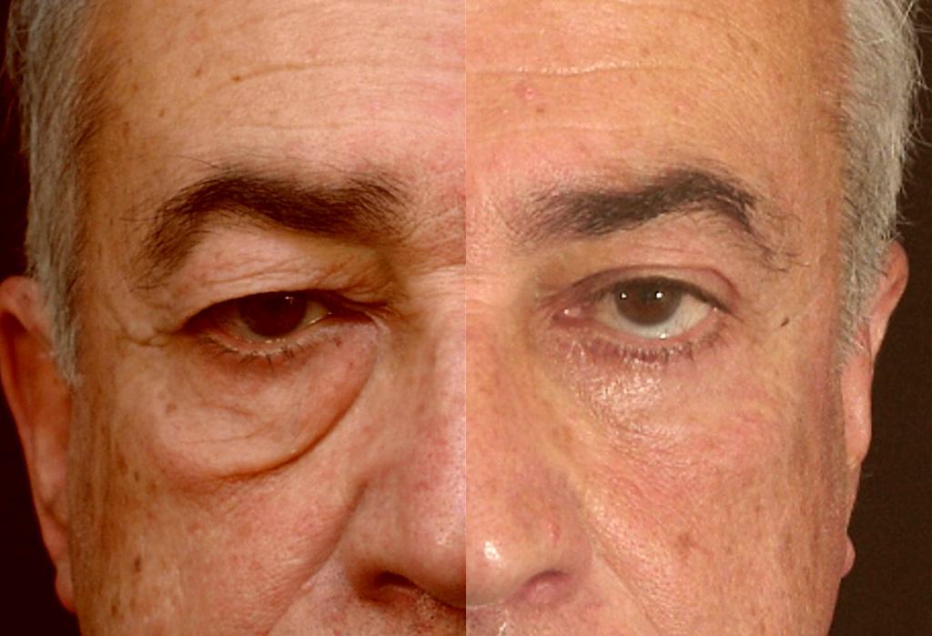 Photo avant/après d'une blépharoplastie chez un homme (1/2 face)