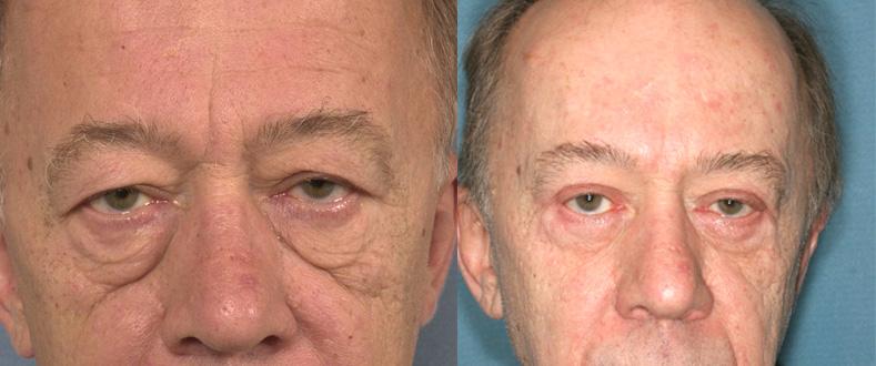 Blépharoplastie chez un homme (1/2 face)