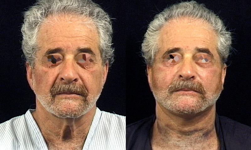 Lifting du visage (1/2 face)