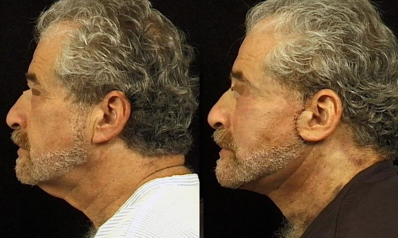 Lifting du visage (2/2 profil)