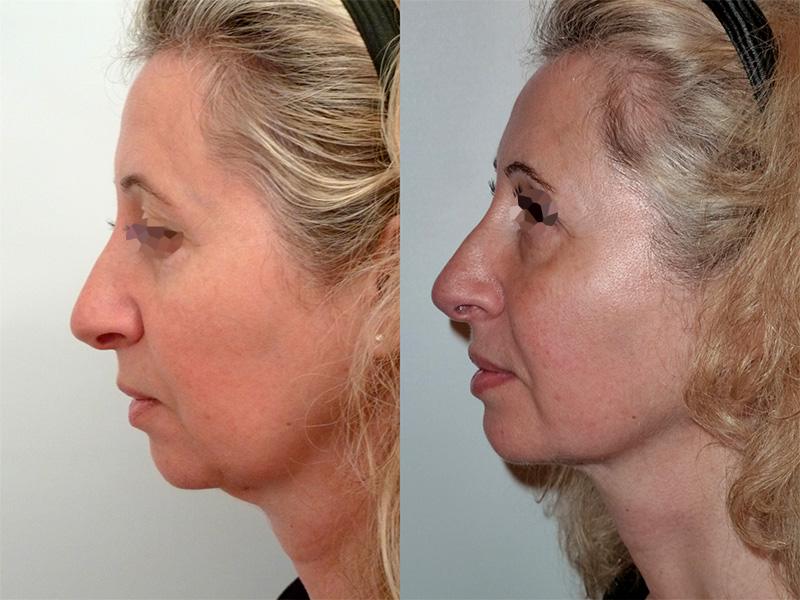 Lipofilling du visage (3/3 de profil)