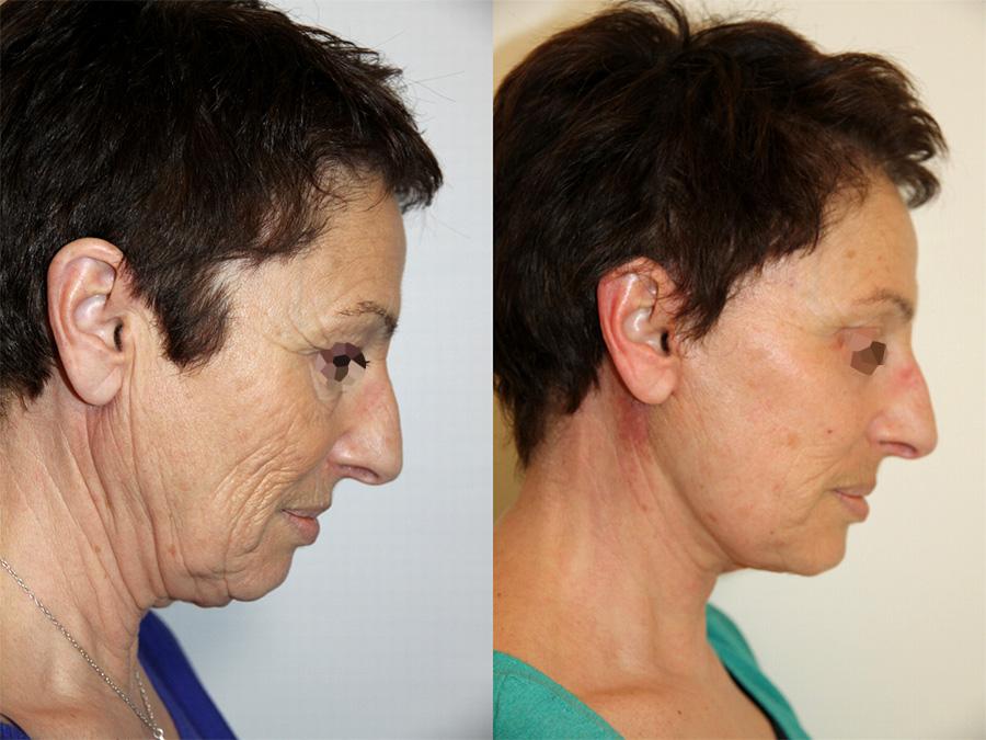 Lifting complet du visage (1/3 de profil)