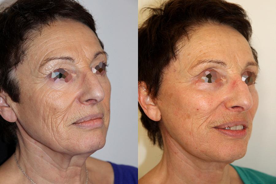 Lifting complet du visage (3/3 de trois quarts)