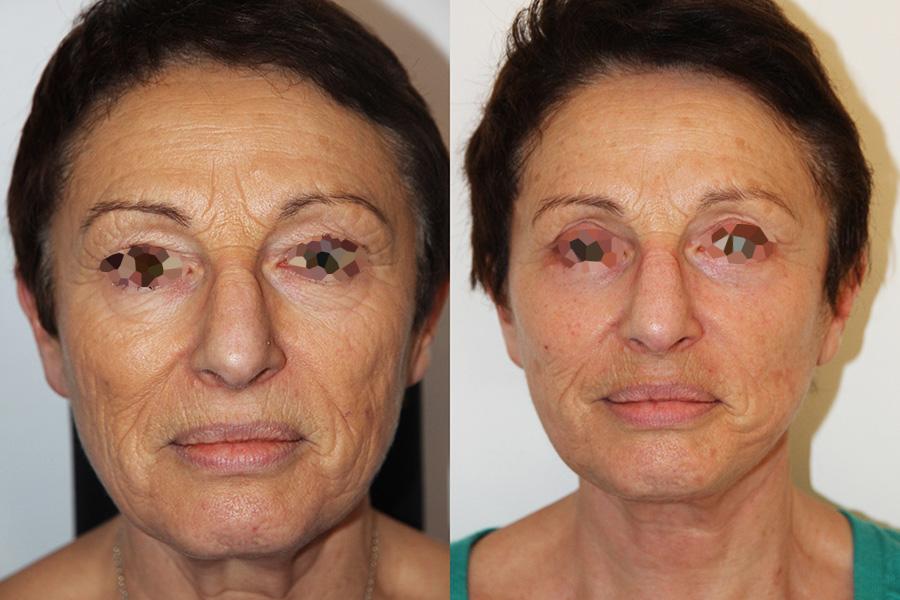 Lifting complet du visage (2/3 de face)