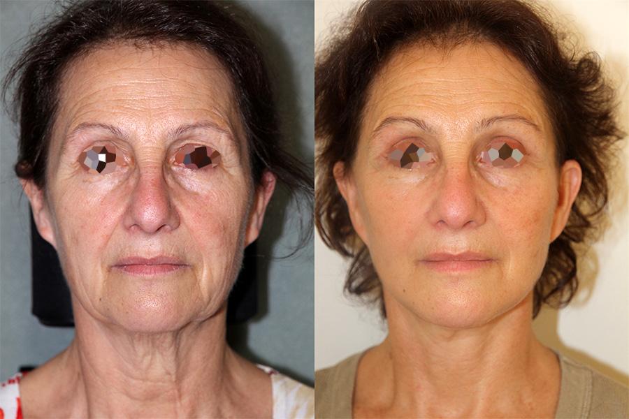 Lifting et lipofilling du visage (1/3 vue de face)