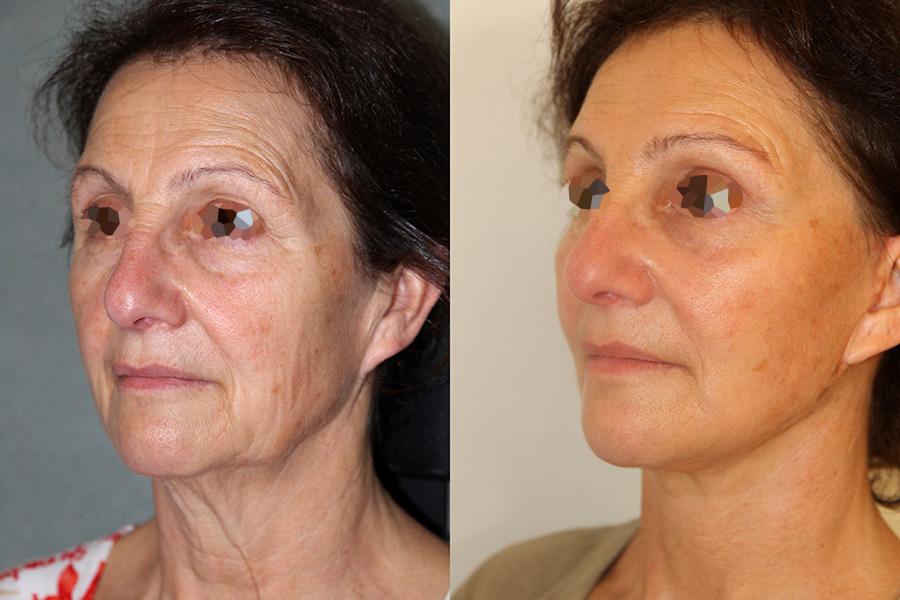 Lifting et lipofilling du visage (3/3 vue de 3/4)