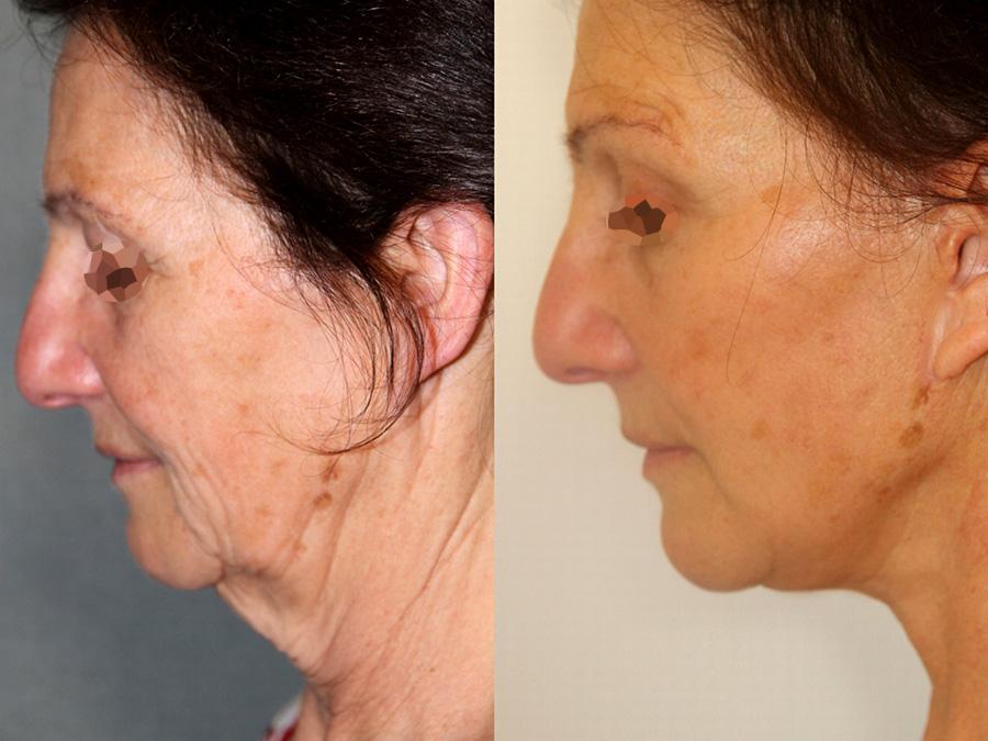Lifting et lipofilling du visage (2/3 vue de profil)