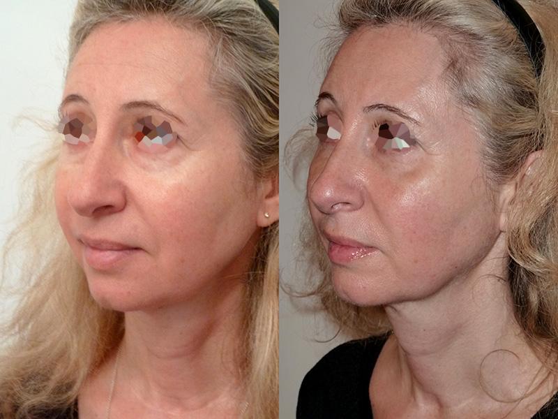 Lipofilling du visage (2/3 de trois quarts)