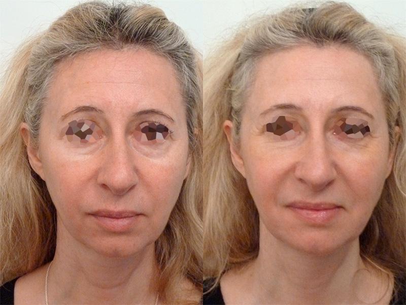 Lipofilling du visage (1/3 de face)