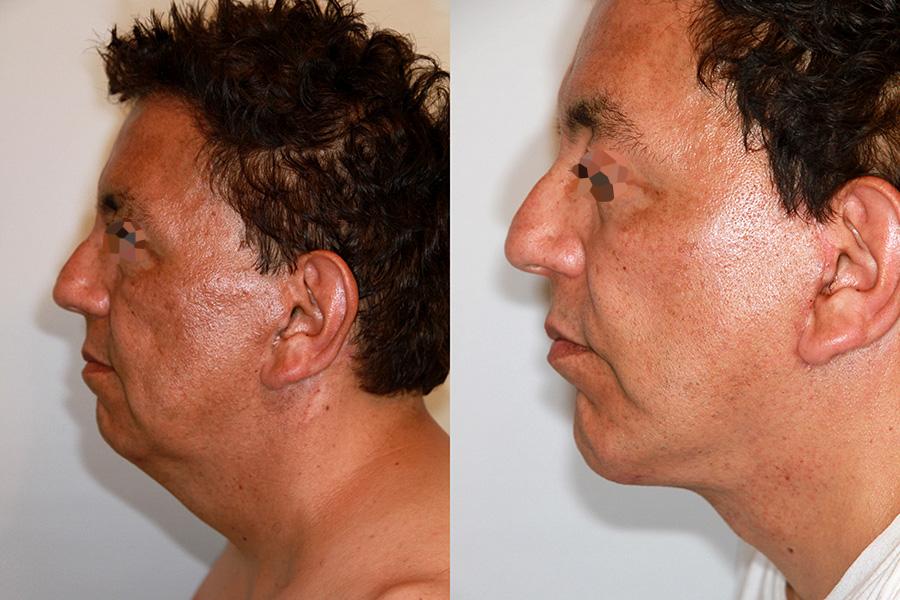 Lifting du visage et du cou chez un homme (1/3 profil)