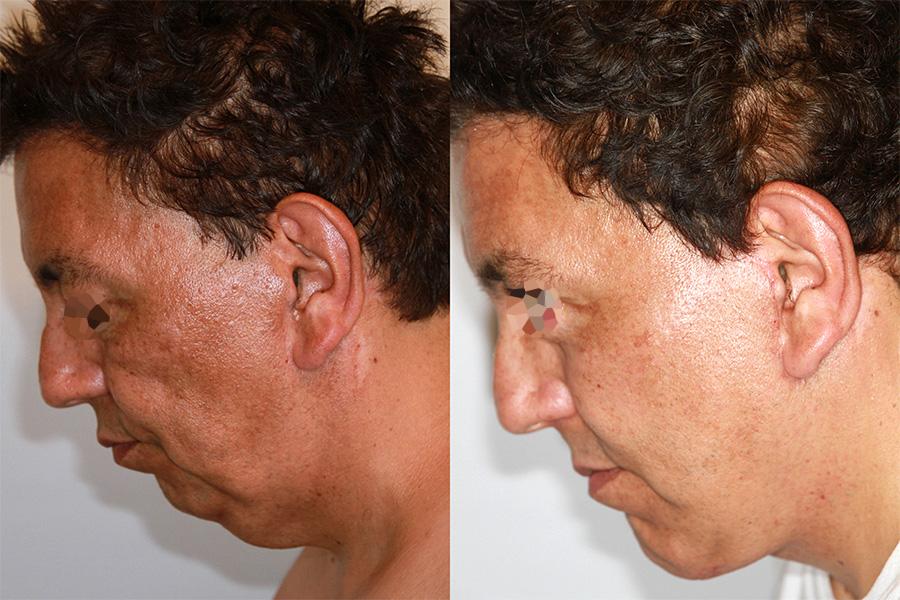 Lifting du visage et du cou chez un homme (2/3 profil)