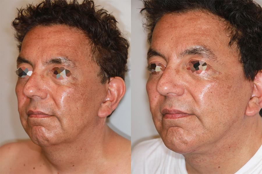 Lifting du visage et du cou chez un homme (3/3 trois quarts)