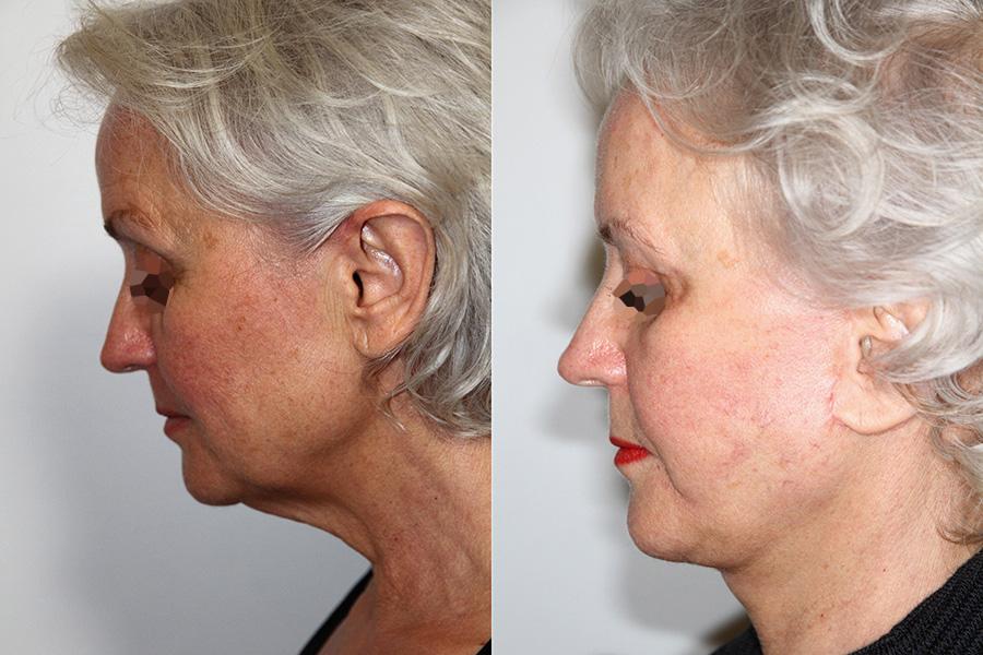 Lifting du visage et front (1/2 profil)