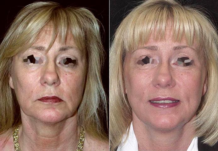 Lifting du visage femme (1/2 de face)