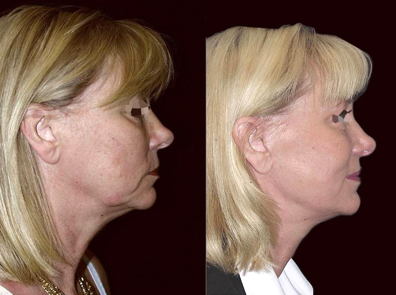 Lifting du visage femme (2/2 de profil)