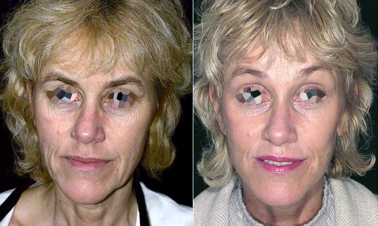 Lifting bas du visage et cou (2/2 de face)