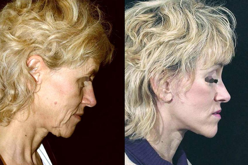 Lifting bas du visage et cou (1/2 de profil)