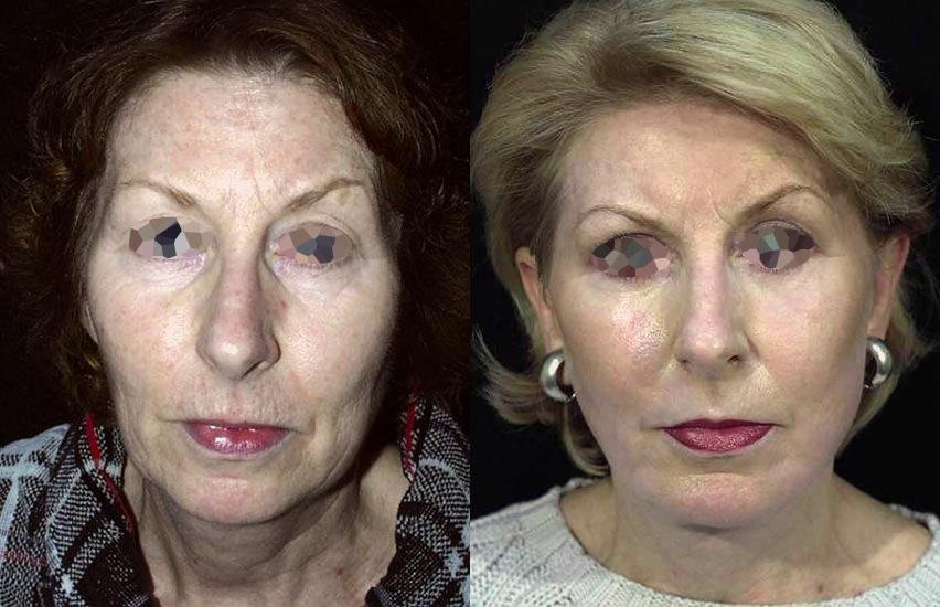 Lifting du visage et du front (1/2 vue de face)