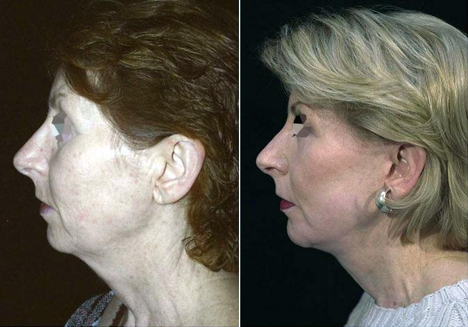 Lifting du visage et du front (2/2 vue de profil)
