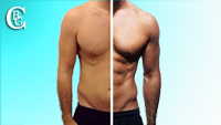 Visit the photo gallery before / after aesthetic operations for men