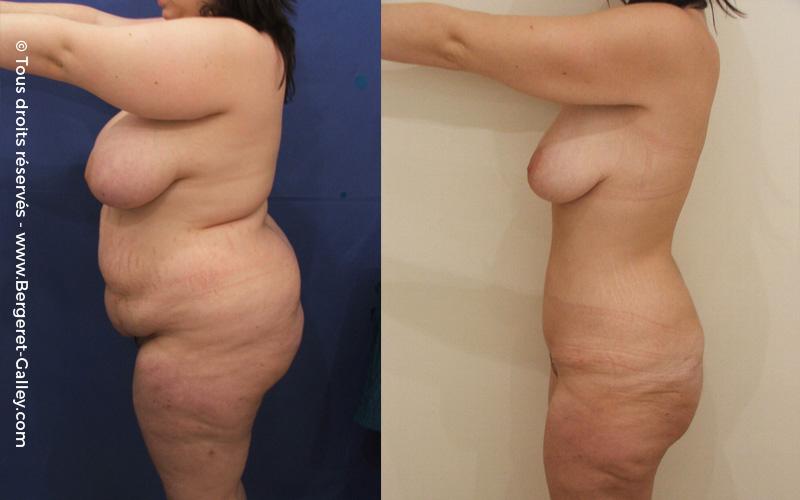 Plastie abdominale chez une femme après plusieurs grossesses