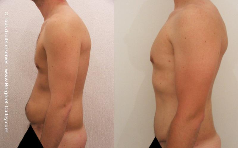 Résultat Plastie abdominale chez un homme de profil.