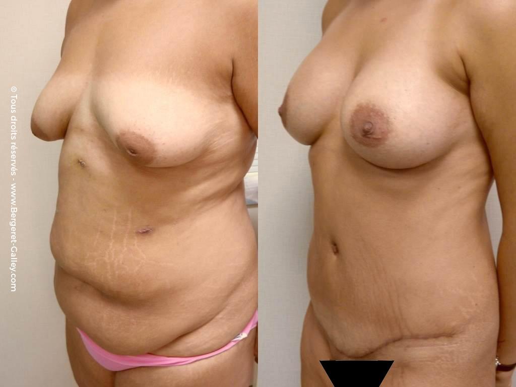 Plastie abdominale chez une femme plusieurs grossesses