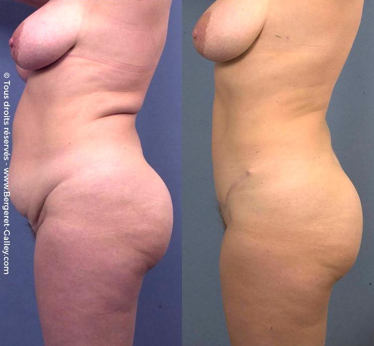Résultat Plastie abdominale chez une femme