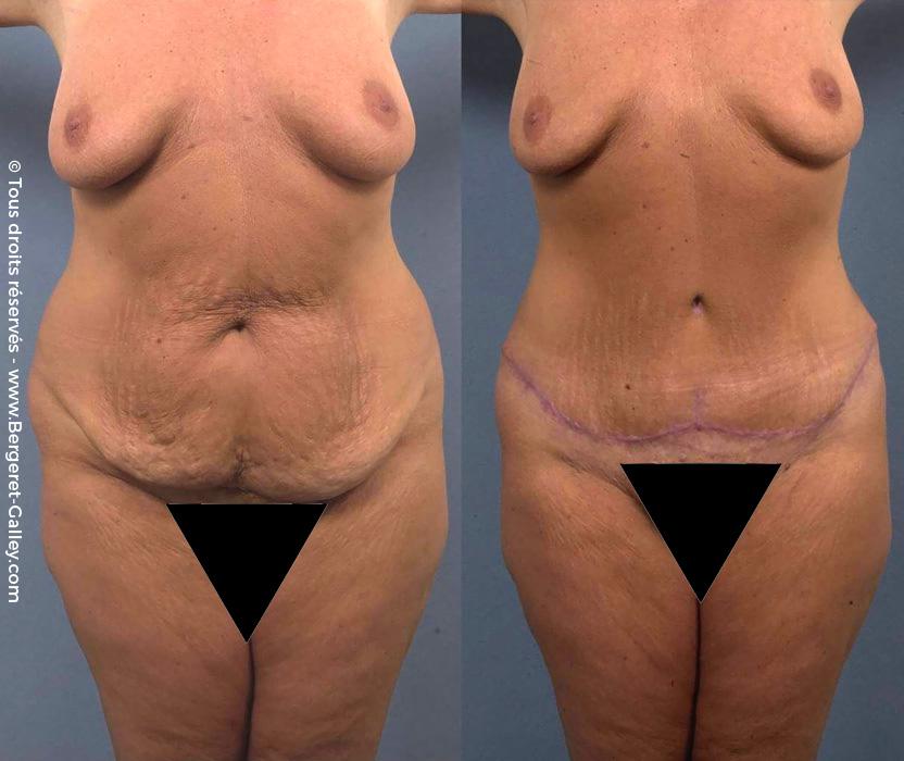 Résultat d'une Plastie abdominale chez une femme