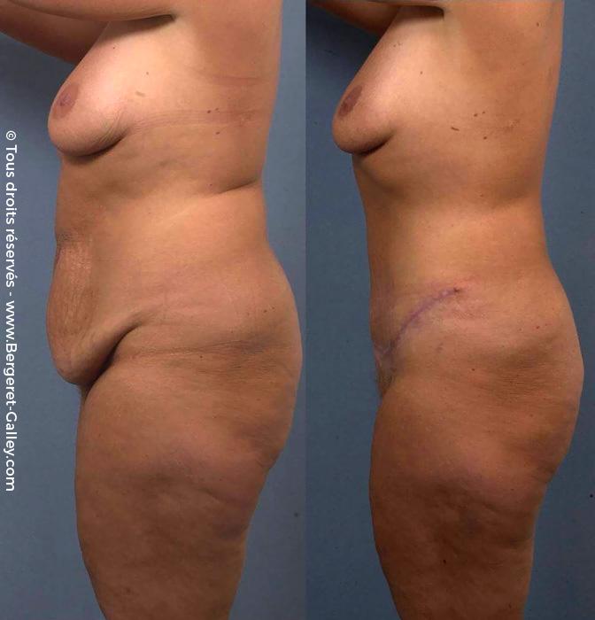 Photo avant/après d'une Plastie abdominale chez une femme