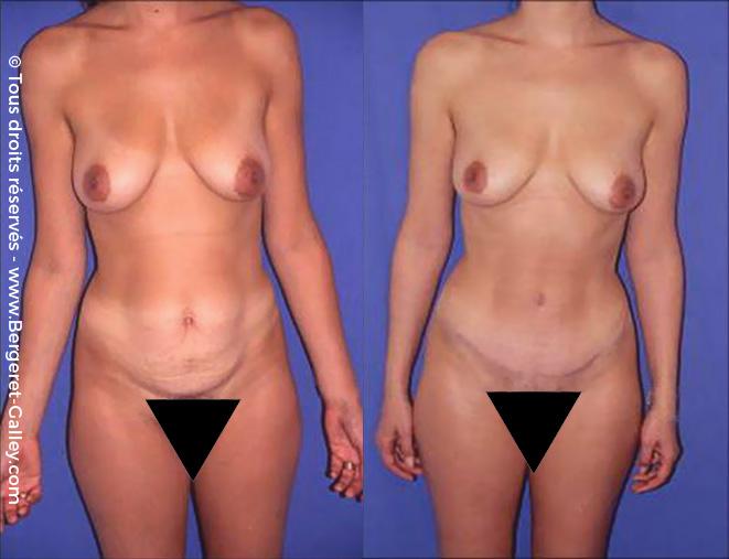 Photo avant/après d'une Plastie abdominale chez une femme de face