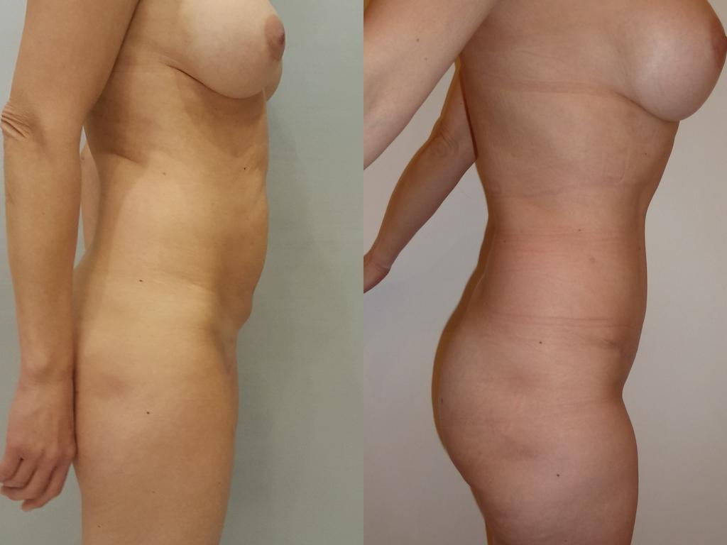 Plastie abdominale