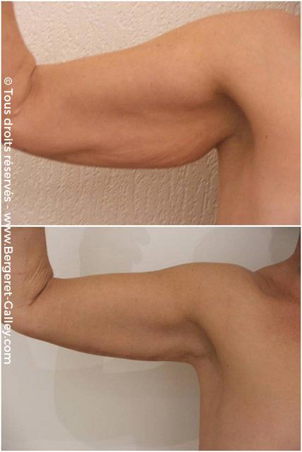 Résultat d'une brachioplastie chez un homme