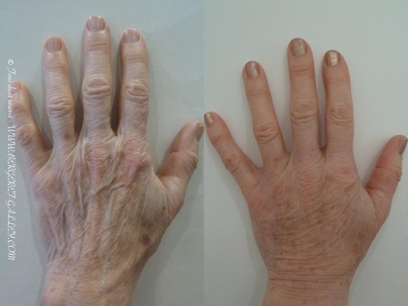 Résultat du lipofilling des mains